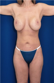 Body Contouring After Photo by Ricardo Rodriguez, MD; Lutherville-Timonium, MD - Case 26882