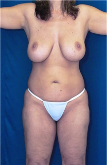 Body Contouring Before Photo by Ricardo Rodriguez, MD; Lutherville-Timonium, MD - Case 26882