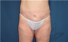 Body Contouring After Photo by Ricardo Rodriguez, MD; Lutherville-Timonium, MD - Case 26883