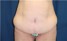 Body Contouring Before Photo by Ricardo Rodriguez, MD; Lutherville-Timonium, MD - Case 26883
