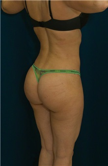 Buttock Implants After Photo by Ricardo Rodriguez, MD; Lutherville-Timonium, MD - Case 26886