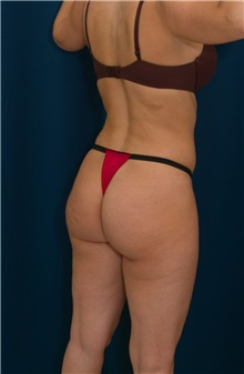 Buttock Implants Before Photo by Ricardo Rodriguez, MD; Lutherville-Timonium, MD - Case 26886