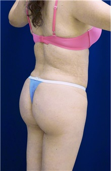 Buttock Implants After Photo by Ricardo Rodriguez, MD; Lutherville-Timonium, MD - Case 26888