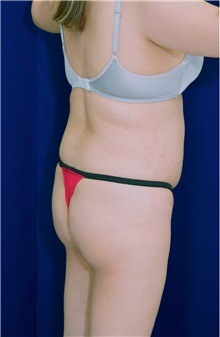 Buttock Implants Before Photo by Ricardo Rodriguez, MD; Lutherville-Timonium, MD - Case 26888