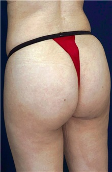 Buttock Implants After Photo by Ricardo Rodriguez, MD; Lutherville-Timonium, MD - Case 26889