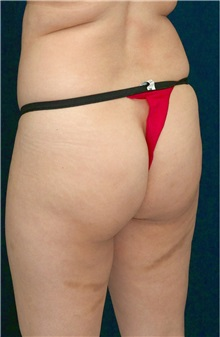 Buttock Implants Before Photo by Ricardo Rodriguez, MD; Lutherville-Timonium, MD - Case 26889