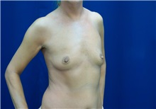 Breast Augmentation Before Photo by Ricardo Rodriguez, MD; Lutherville-Timonium, MD - Case 27004