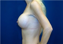 Breast Augmentation After Photo by Ricardo Rodriguez, MD; Lutherville-Timonium, MD - Case 27004