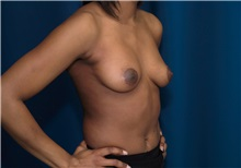 Breast Augmentation Before Photo by Ricardo Rodriguez, MD; Lutherville-Timonium, MD - Case 27005