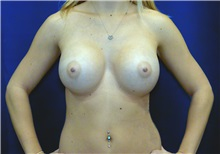 Breast Augmentation After Photo by Ricardo Rodriguez, MD; Lutherville-Timonium, MD - Case 27006
