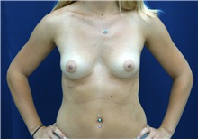 Breast Augmentation Before Photo by Ricardo Rodriguez, MD; Lutherville-Timonium, MD - Case 27006