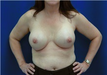 Breast Augmentation After Photo by Ricardo Rodriguez, MD; Lutherville-Timonium, MD - Case 27007