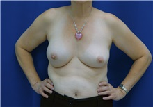 Breast Augmentation Before Photo by Ricardo Rodriguez, MD; Lutherville-Timonium, MD - Case 27007