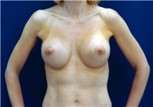 Breast Augmentation After Photo by Ricardo Rodriguez, MD; Lutherville-Timonium, MD - Case 27008