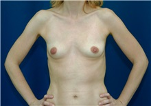 Breast Augmentation Before Photo by Ricardo Rodriguez, MD; Lutherville-Timonium, MD - Case 27008