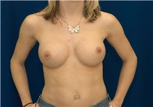 Breast Augmentation After Photo by Ricardo Rodriguez, MD; Lutherville-Timonium, MD - Case 27009