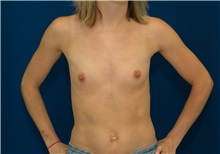 Breast Augmentation Before Photo by Ricardo Rodriguez, MD; Lutherville-Timonium, MD - Case 27009