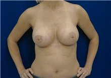 Breast Augmentation After Photo by Ricardo Rodriguez, MD; Lutherville-Timonium, MD - Case 27010