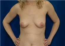 Breast Augmentation Before Photo by Ricardo Rodriguez, MD; Lutherville-Timonium, MD - Case 27010