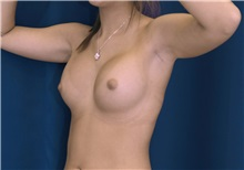 Breast Augmentation After Photo by Ricardo Rodriguez, MD; Lutherville-Timonium, MD - Case 27011