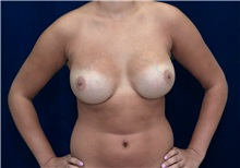 Breast Augmentation After Photo by Ricardo Rodriguez, MD; Lutherville-Timonium, MD - Case 27012