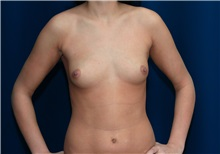 Breast Augmentation Before Photo by Ricardo Rodriguez, MD; Lutherville-Timonium, MD - Case 27012