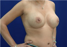 Breast Augmentation After Photo by Ricardo Rodriguez, MD; Lutherville-Timonium, MD - Case 27013
