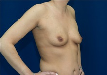 Breast Augmentation Before Photo by Ricardo Rodriguez, MD; Lutherville-Timonium, MD - Case 27013
