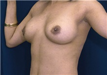 Breast Augmentation After Photo by Ricardo Rodriguez, MD; Lutherville-Timonium, MD - Case 27014