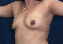Breast Augmentation Before Photo by Ricardo Rodriguez, MD; Lutherville-Timonium, MD - Case 27014