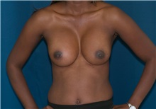 Breast Augmentation After Photo by Ricardo Rodriguez, MD; Lutherville-Timonium, MD - Case 27015