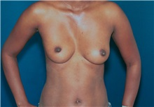 Breast Augmentation Before Photo by Ricardo Rodriguez, MD; Lutherville-Timonium, MD - Case 27015