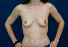 Breast Augmentation Before Photo by Ricardo Rodriguez, MD; Lutherville-Timonium, MD - Case 27016