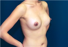 Breast Augmentation After Photo by Ricardo Rodriguez, MD; Lutherville-Timonium, MD - Case 27017