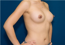 Breast Augmentation Before Photo by Ricardo Rodriguez, MD; Lutherville-Timonium, MD - Case 27017