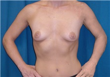 Breast Lift Before Photo by Ricardo Rodriguez, MD; Lutherville-Timonium, MD - Case 27018