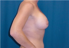 Breast Lift After Photo by Ricardo Rodriguez, MD; Lutherville-Timonium, MD - Case 27018
