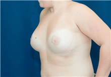 Breast Lift After Photo by Ricardo Rodriguez, MD; Lutherville-Timonium, MD - Case 27019