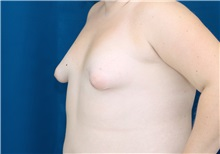 Breast Lift Before Photo by Ricardo Rodriguez, MD; Lutherville-Timonium, MD - Case 27019