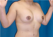 Breast Lift After Photo by Ricardo Rodriguez, MD; Lutherville-Timonium, MD - Case 27020