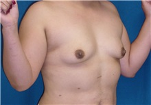 Breast Lift Before Photo by Ricardo Rodriguez, MD; Lutherville-Timonium, MD - Case 27020