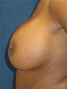 Breast Lift After Photo by Ricardo Rodriguez, MD; Lutherville-Timonium, MD - Case 27021
