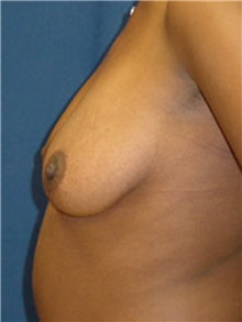 Breast Lift Before Photo by Ricardo Rodriguez, MD; Lutherville-Timonium, MD - Case 27021
