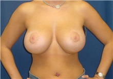 Breast Lift After Photo by Ricardo Rodriguez, MD; Lutherville-Timonium, MD - Case 27023