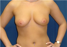 Breast Lift Before Photo by Ricardo Rodriguez, MD; Lutherville-Timonium, MD - Case 27023