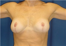 Breast Lift After Photo by Ricardo Rodriguez, MD; Lutherville-Timonium, MD - Case 27024