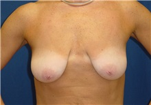 Breast Lift Before Photo by Ricardo Rodriguez, MD; Lutherville-Timonium, MD - Case 27024