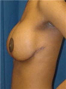 Breast Lift After Photo by Ricardo Rodriguez, MD; Lutherville-Timonium, MD - Case 27026