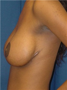 Breast Lift Before Photo by Ricardo Rodriguez, MD; Lutherville-Timonium, MD - Case 27026