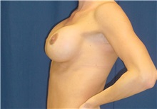 Breast Lift After Photo by Ricardo Rodriguez, MD; Lutherville-Timonium, MD - Case 27028